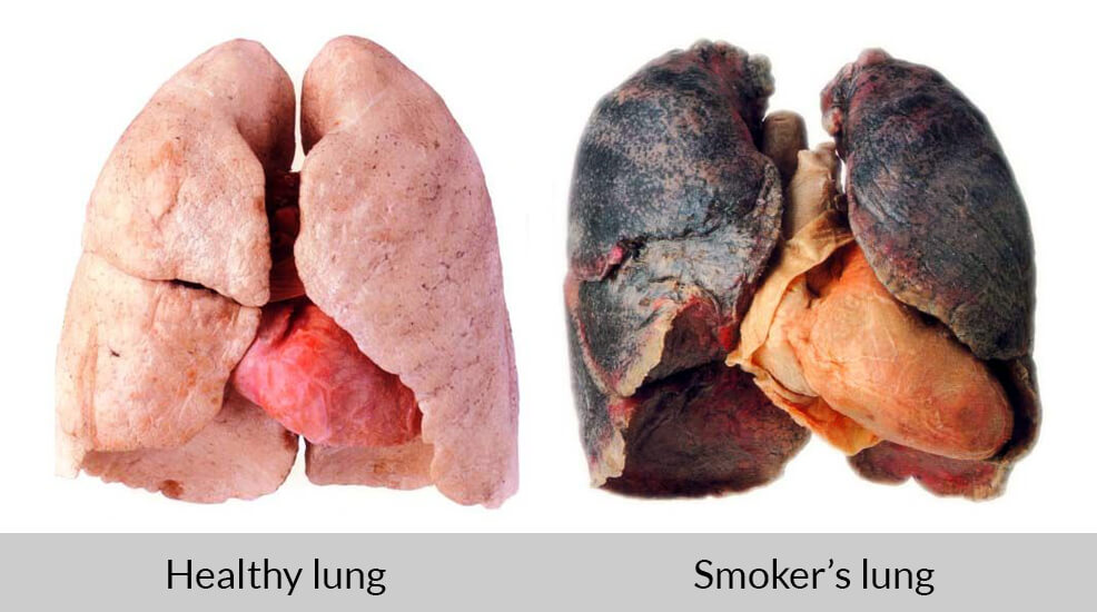 healthy lung vs smoker's lung